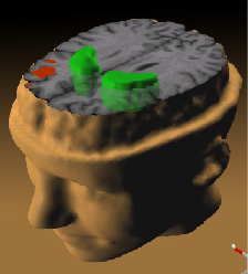 Schizophrenia_PET_scan